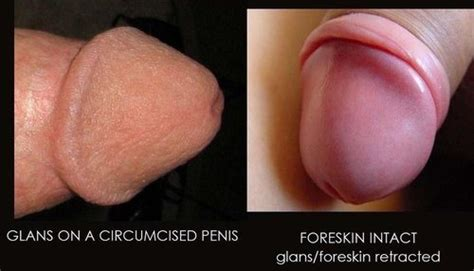 Pain with erection in uncircumcised penis urology medhelp jpg 500x286