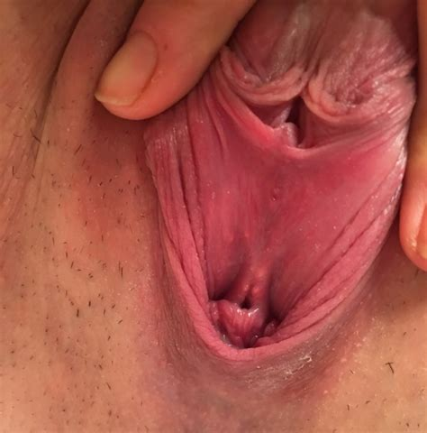 I am worried that my vaginal opening is not normal jpg 789x800